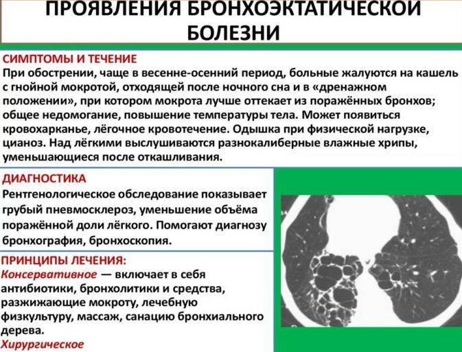 Доброкачественные опухоли легких