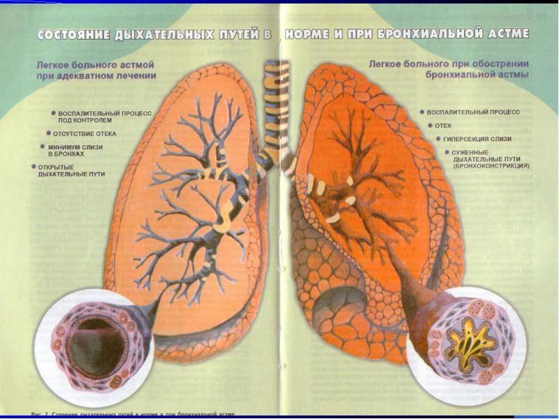 Советы по содержанию домашних животных при тяжелой астме - все про аллергию