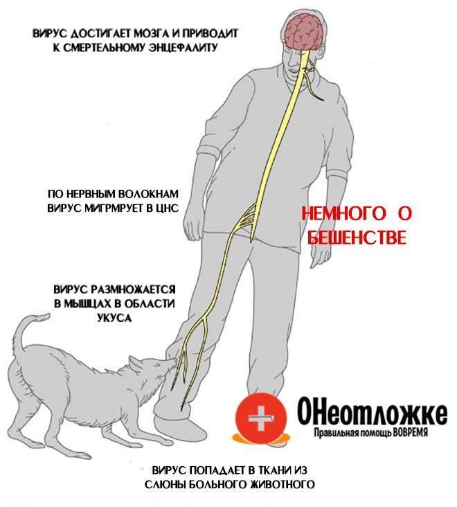 Бешенство - симптомы болезни, профилактика и лечение бешенства, причины заболевания и его диагностика на eurolab