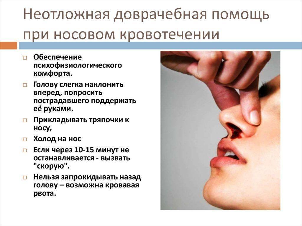 У кота кровь из носа: причины, первая помощь, лечение у кота кровь из носа: причины, первая помощь, лечение