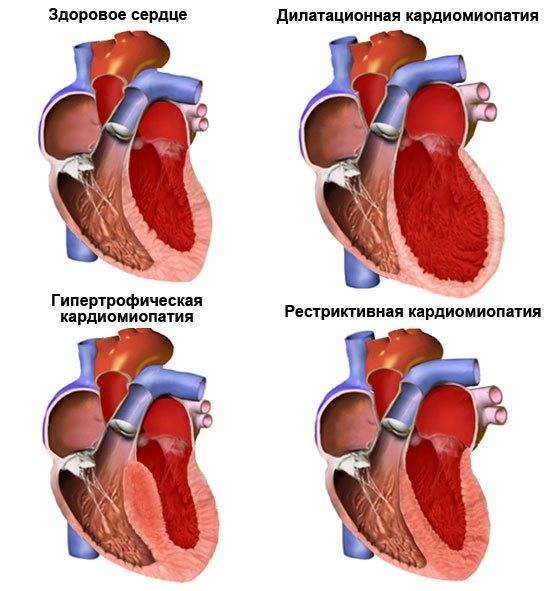 Гипертрофическая кардиомиопатия у кошек (гкмп)
