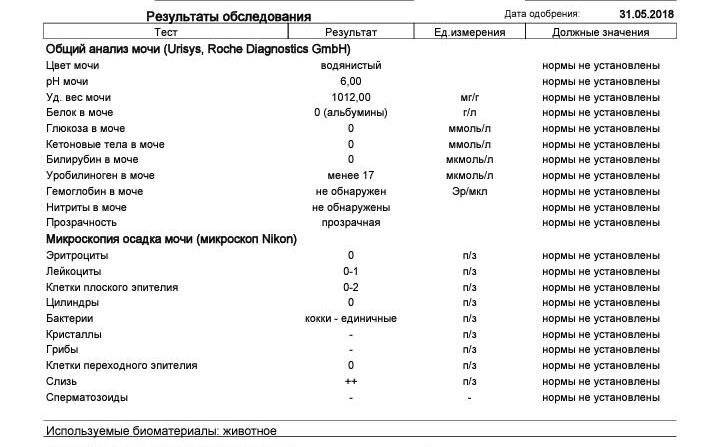 Повышенный белок в моче | компетентно о здоровье на ilive