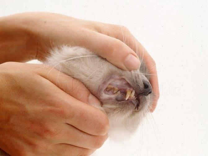 Пиелонефрит, почечная инфекция симптомы, лечение