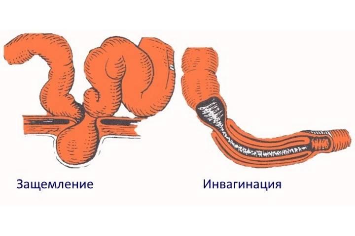 """Кишечная непроходимость у кошек - симптомы и лечение  непроходимости кишечника у кошек в москве. ветеринарная клиника """"зоостатус"""""""