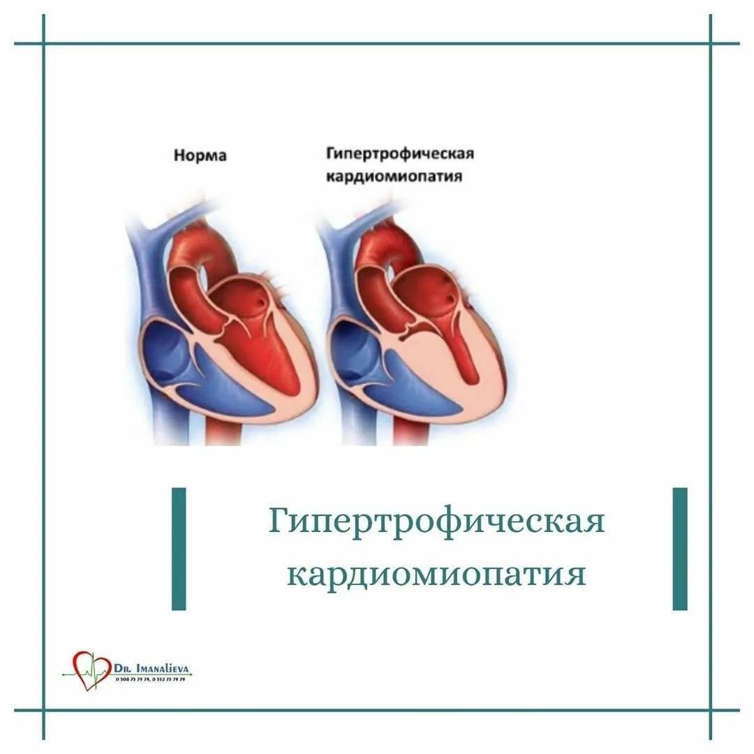 Гкмп у кошек: симптомы и лечение гипертрофической кардиомиопатии