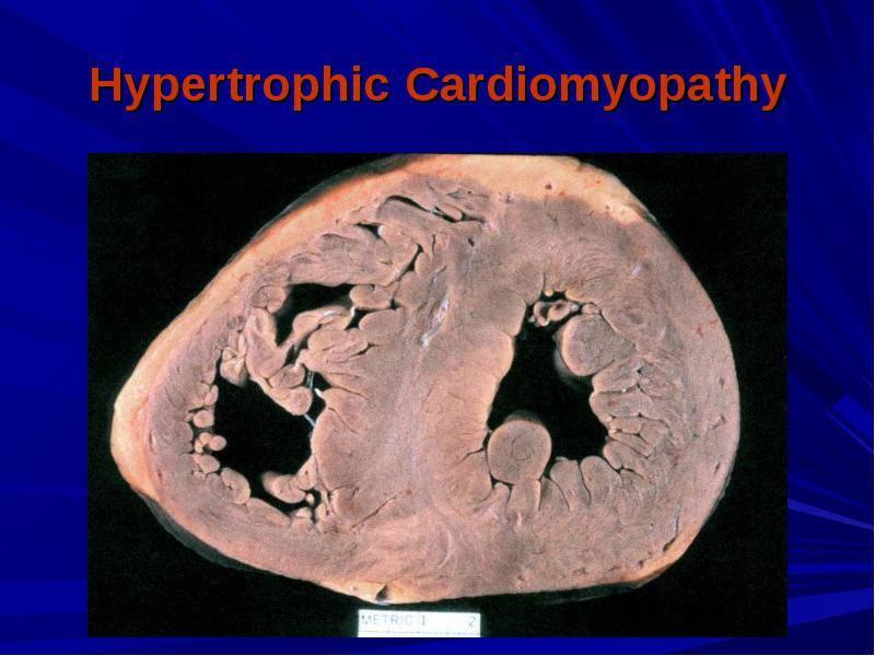 Гипертрофическая кардиомиопатия — википедия