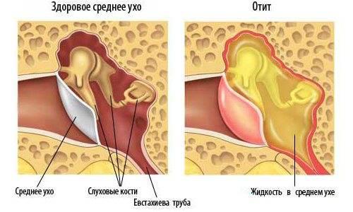 Непроходимость кишечника: симптомы и лечение кишечной непроходимости в одессе | медицинский дом odrex