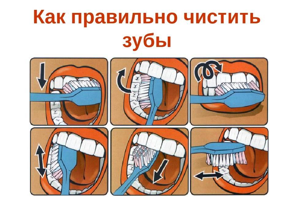 Как и чем почистить зубы собаке в домашних условиях