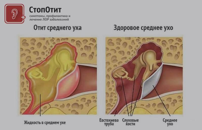 Гингивит: симптомы и лечение у взрослых