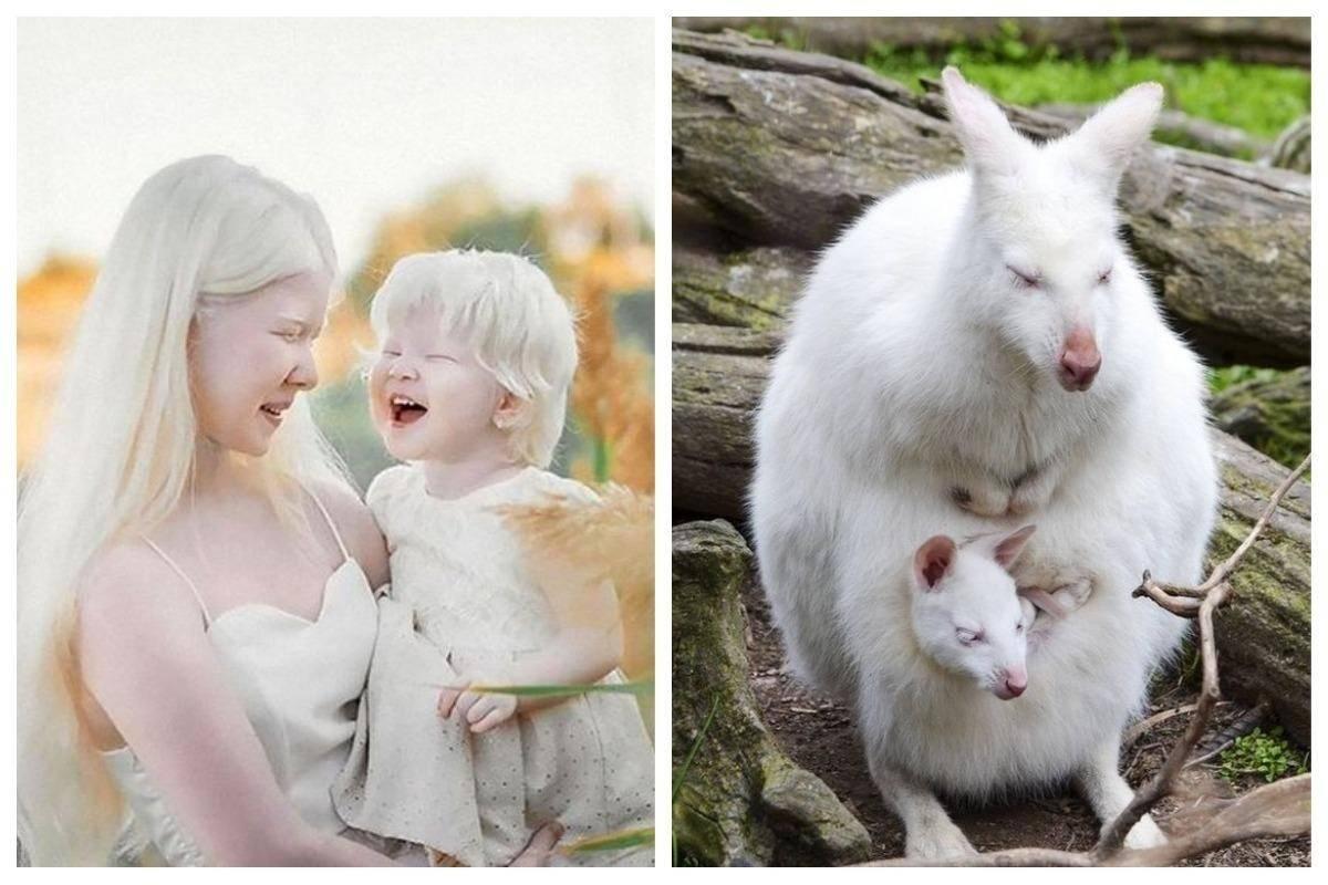 Люди альбиносы - интересные факты и фото