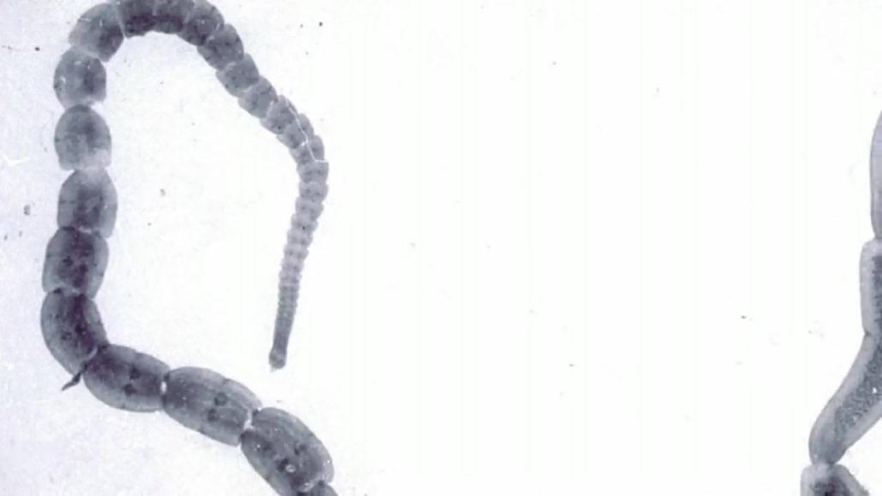 Что такое дипилидиоз? – медицинский портал parazit.expert