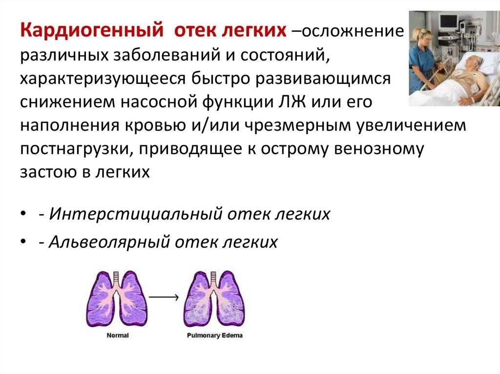Лимфедема - это скопление в тканях лимфатической жидкости из-за нарушения ее транспортировки