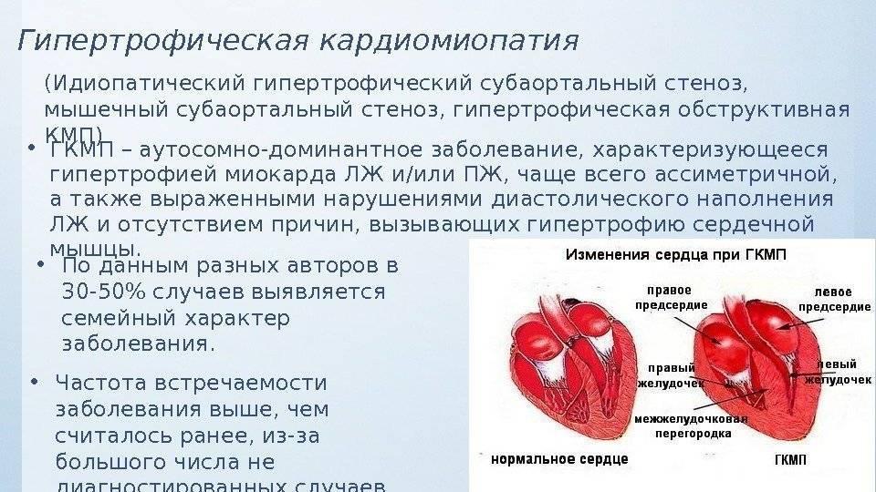 Симптомы и лечение кардиомиопатии у кошек в нижнем новгороде