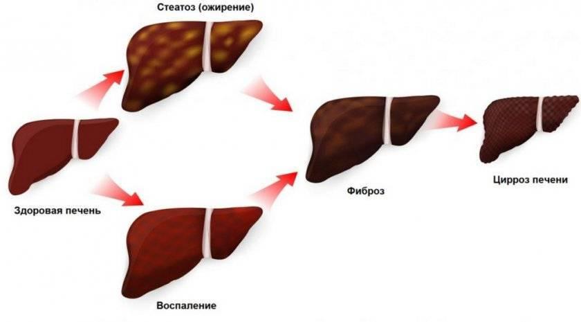 Неспецифическое воспаление кишечника у кошек (innflammatory bowel disease)