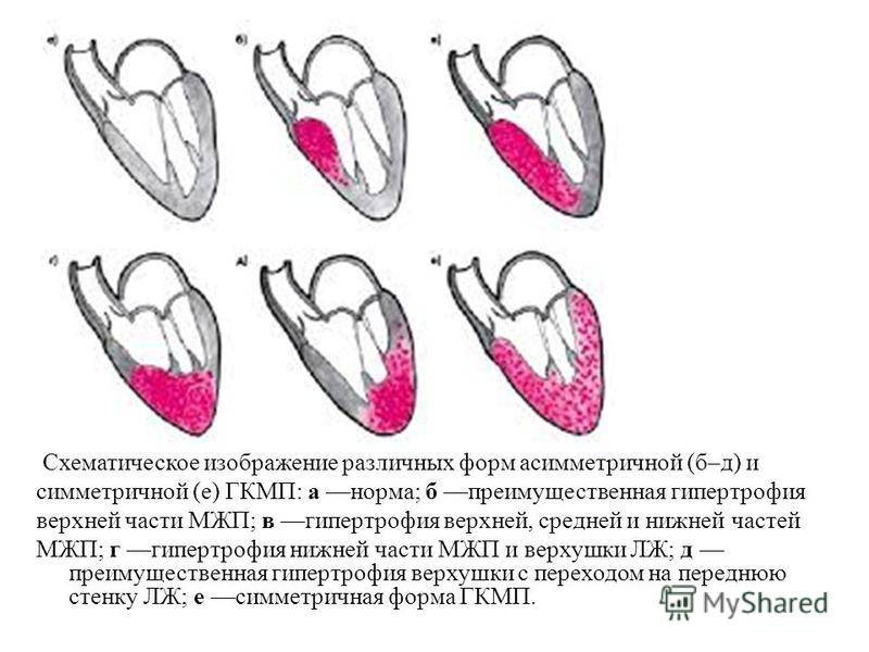 Гипертрофическая кардиомиопатия - вики