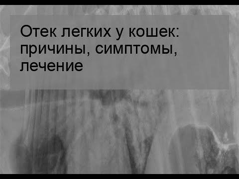 Лимфедема