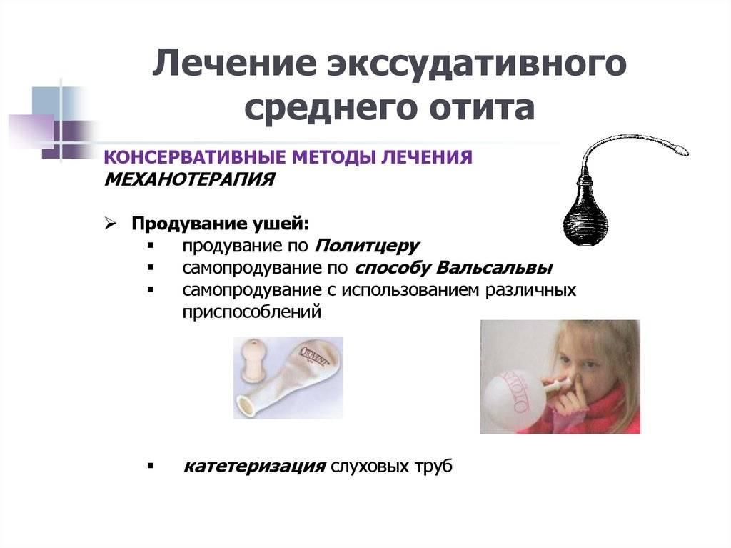 Лечение экссудативного отита в домашних условиях народными средствами