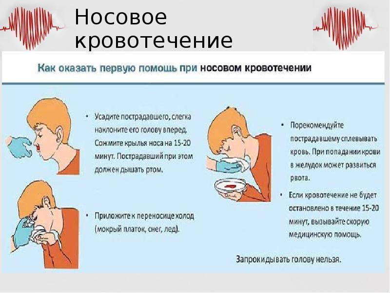 Носовое кровотечение у кошек и котов - причины, диагностика и лечение! | caticat.ru