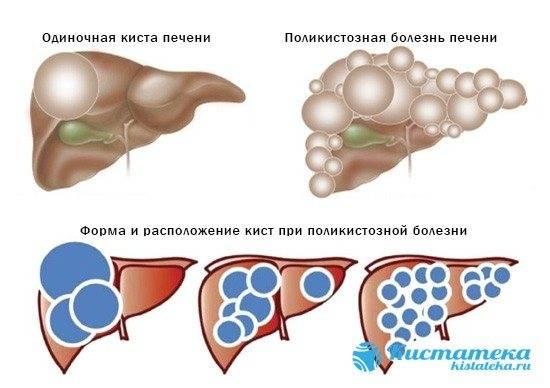 """Кормление при мочекаменной болезни цистинового, фосфатного, силикатного и смешанного типа у кошек. ветеринарная клиника """"зоостатус"""""""