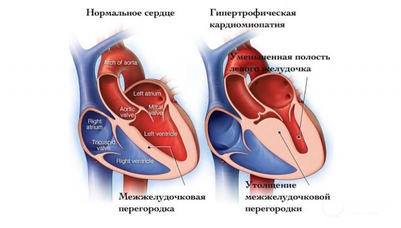 Тромбоэмболия сосудов у кошек при кардиомиопатии