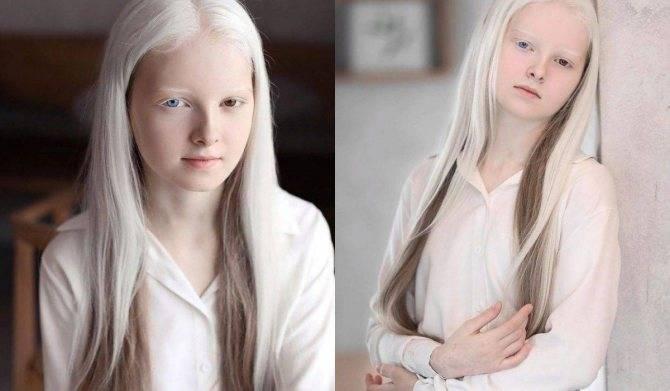 Интересная информация об особых белых доберманах альбиносах: описание альбиносов