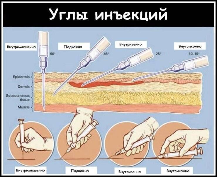 Безопасная техника инъекций