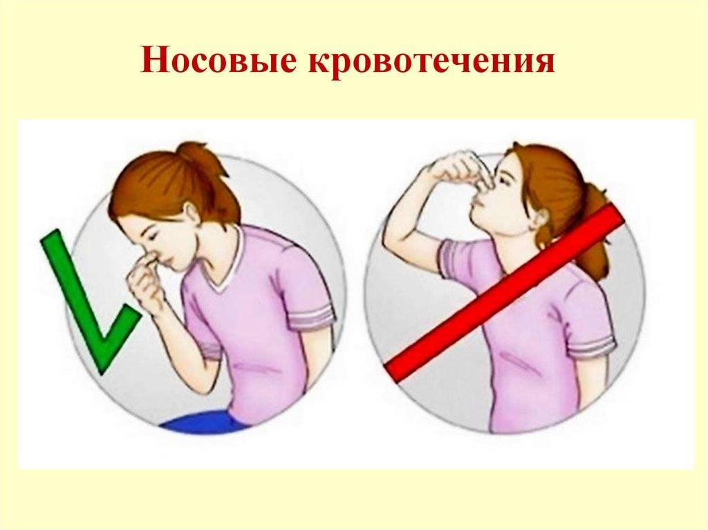 Помощь при кровотечении. виды кровотечений. кровоостанавливающие препараты