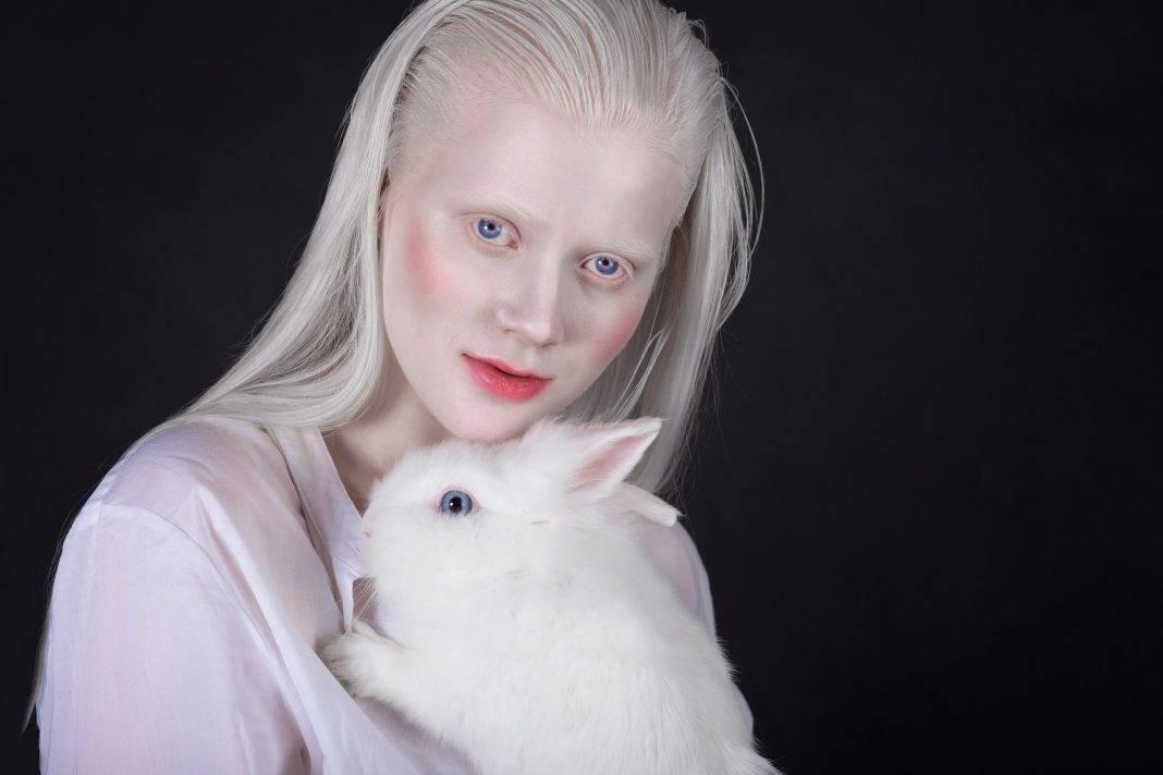 Люди альбиносы: фотографии и интересные факты