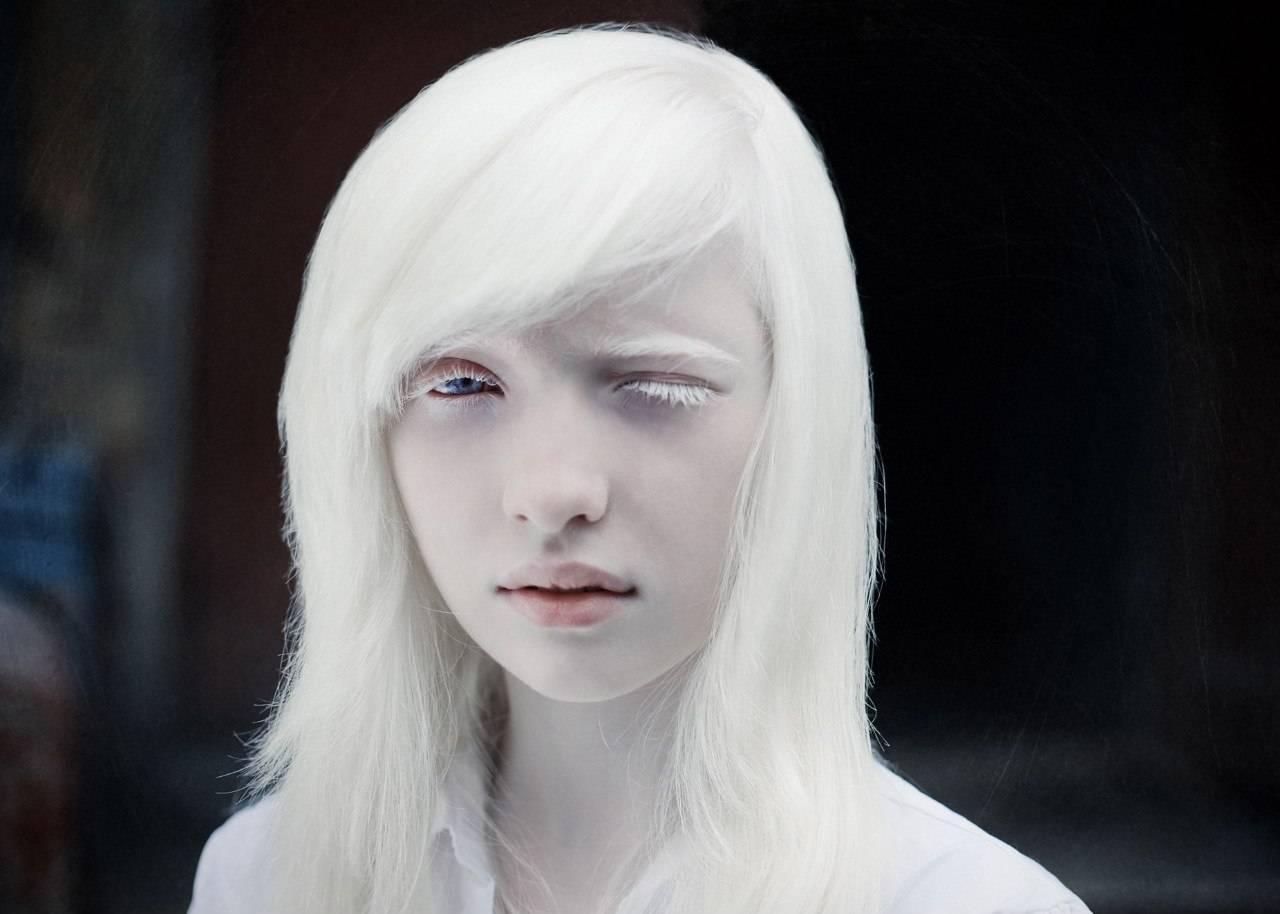 Красивые животные альбиносы фото подборка | science debate