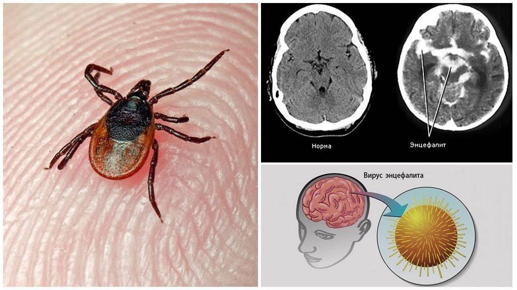 Клещевой энцефалит: профилактика, вакцинация (прививка), симптомы – напоправку – напоправку
