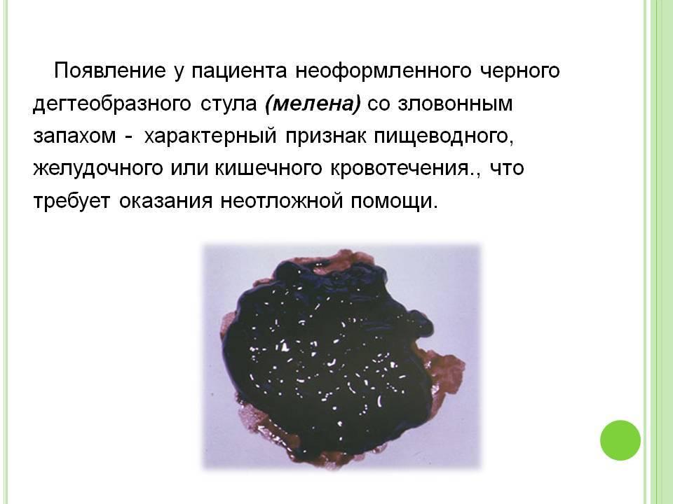 Черный кал у кошки причины, почему у кота черный кал - ветклиника зоостатус