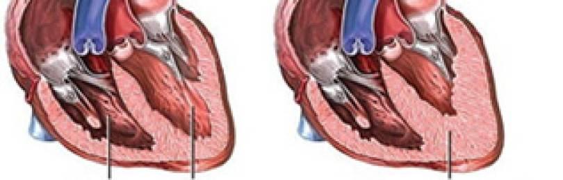 """Гипертрофическая кардиомиопатия кошек (гкмп) - симптомы лечение заболеваний сердечной мышцы у кошек в москве. ветеринарная клиника """"зоостатус"""""""
