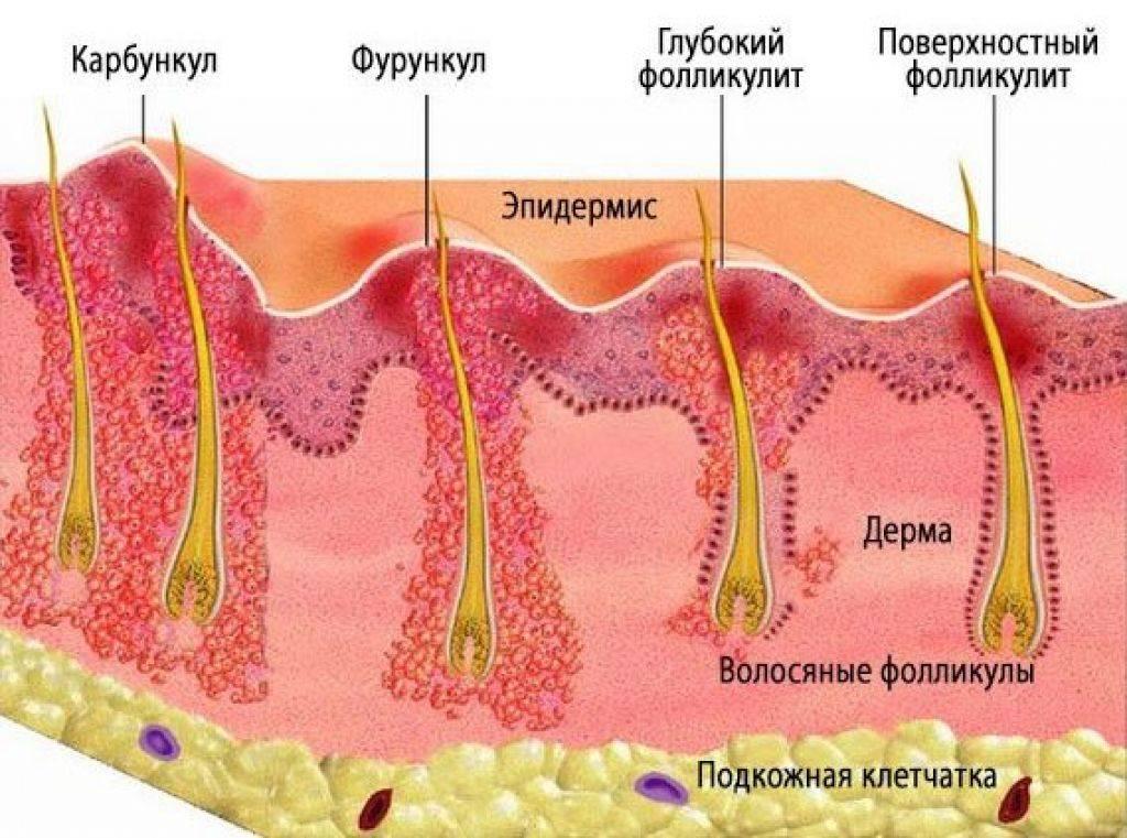 Мазь от грибка между пальцами : названия и способы применения | компетентно о здоровье на ilive