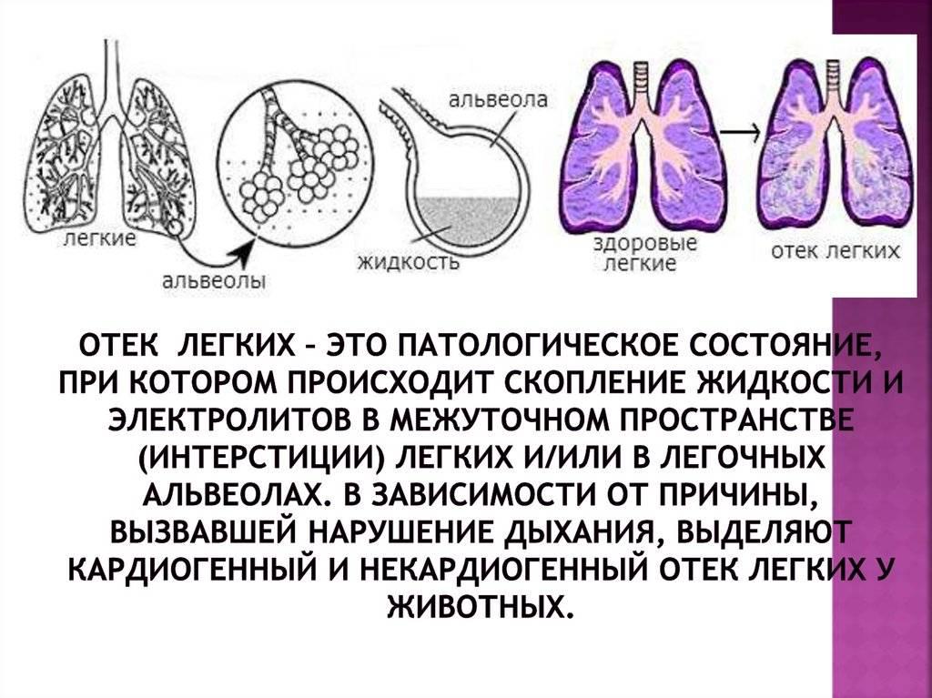 Доброкачественные опухоли легких!
