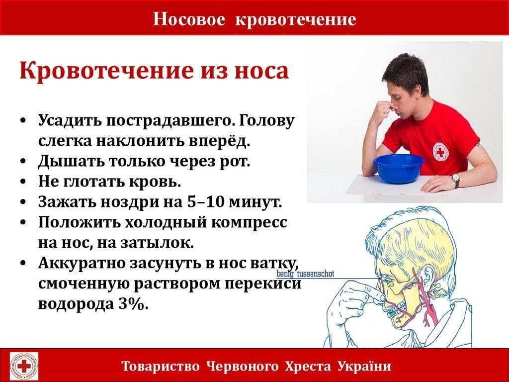 """Кровотечение из носа у кошек - причины, лечение эпистаксиса у кошек в москве. ветеринарная клиника """"зоостатус"""""""