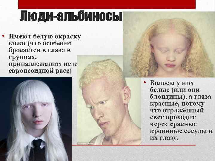 Коты-альбиносы: что такое ген альбинизма, описание внешних особенностей, характер и советы по уходу и содержанию